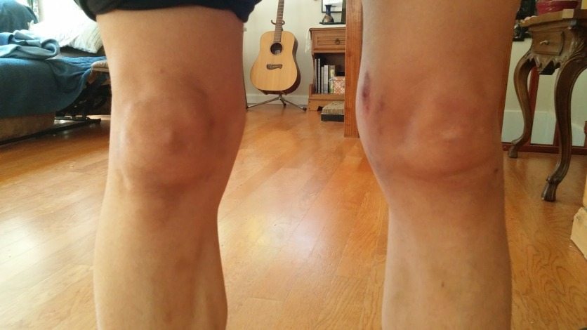 Swollen knee after crash